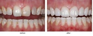 photo of veneers