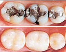 Dental Restoration Before and After Photo
