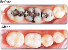 photo of tooth-colored fillings